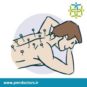 کاربرد طب سوزنی در طب فیزیکی و توانبخشی
