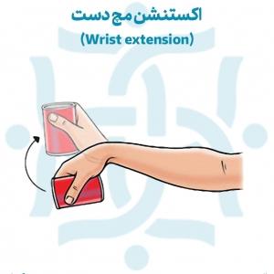 اکستنشن مچ دست تمرینات ورزشی پس از درمان شکستگی مچ دست