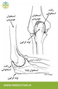 آسیب آرنج در ورزش های پرتابی