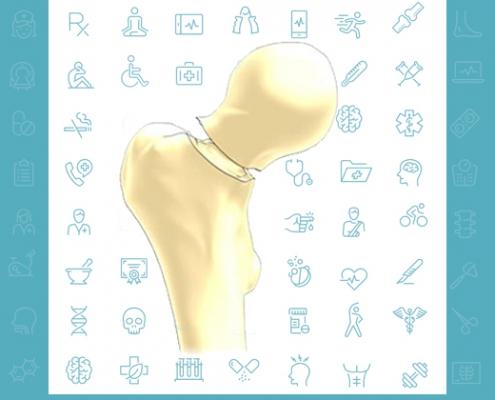 پیشگیری از شکستگی سر استخوان ران