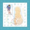 هالوکس ریجیدوس (سفتی شست پا)