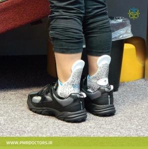 آتل مخصوص پا در مشکلات حرکتی راه رفتن روی پنجه و انگشتان پا (toe walking)