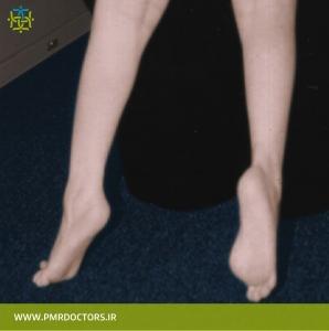 راه رفتن روی پنجه و انگشتان پا (toe walking)