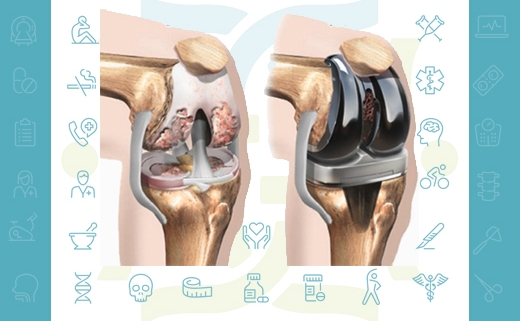 توصیه های لازم بعد از جراحی تعویض مفصل زانو