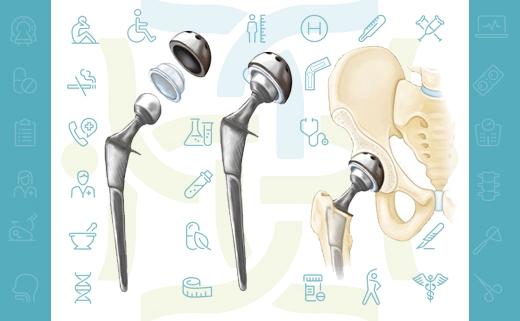 توصیه های لازم بعد از جراحی تعویض مفصل هیپ