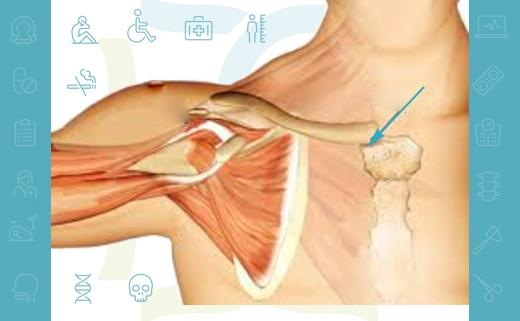 ضایعات مفصل استرنوکلاویکولار