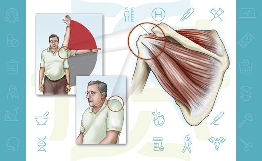آسیب تاندونهای روتاتور کاف شانه