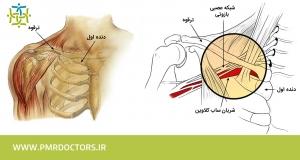 ساختار بازو شبکه بازویی