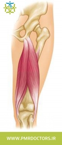 عضلات همسترینگ در قسمت پشت ران