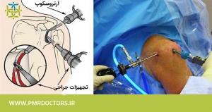 درمان پارگی لبروم شانه