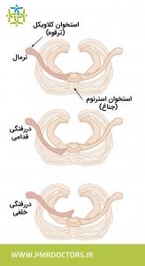 دررفتگی مفصل استرنوکلاویکولار