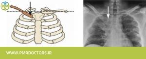 عکس ایکس ری شانه و قفسه سینه