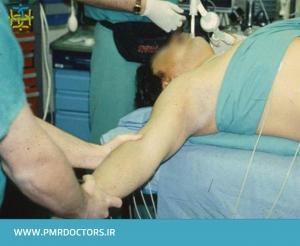 درمان مفصل استرنوکلاویکولار