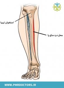 ساختار ساق پا در بیماری شین اسپلینت