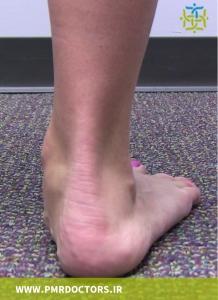 کف پای صاف می تواند فشار روی عضلات ساق پا در هنگام ورزش را افزایش دهد.