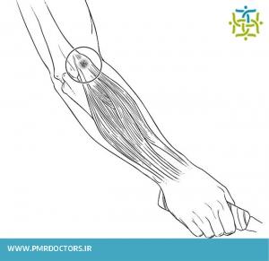 محل درد در اپی کندیلیت خارجی