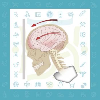 توانبخشی پس از آسیب دیدگی مغزی