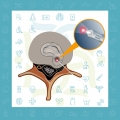 درمان بیرون زدگی دیسک با لیزر درون دیسک