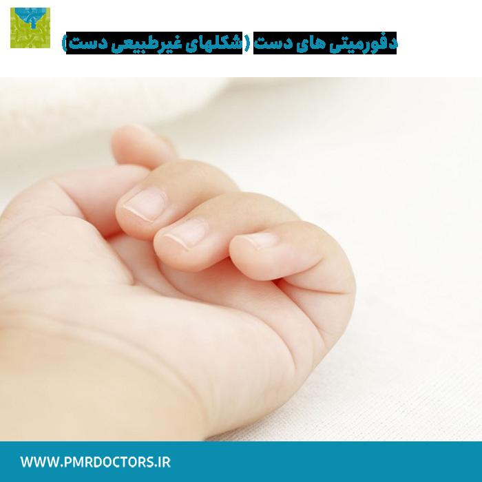 شکلهای غیرطبیعی دست ( دفورمیتی های دست )