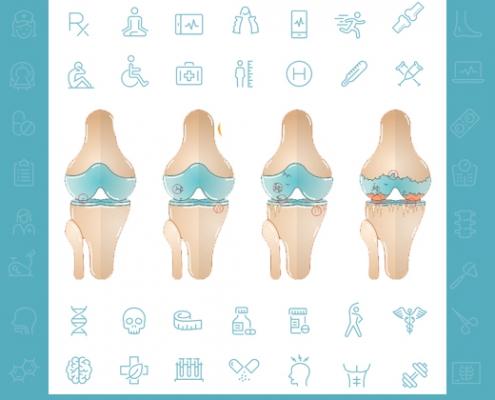 درمان غیر جراحی آرتروز زانو - متخصصین طب فیزیکی و توانبخشی