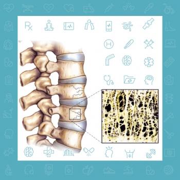 شکستگی ستون فقرات ناشی از پوکی استخوان