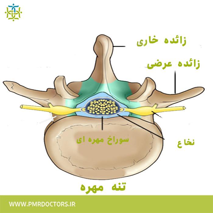 درمان شکستگی ستون فقرات - شکستگی ستون فقرات ناشی از پوکی استخوان