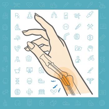 تنوسینوویت دکرون ، علتی برای درد شست