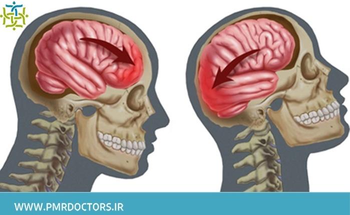 تشخیص سندروم پس از ضربه سر
