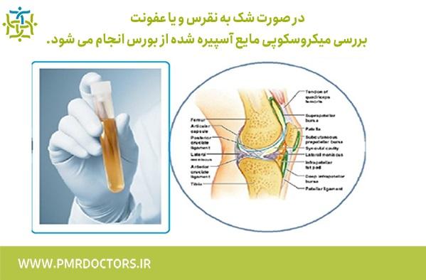 درمان بورسیت - راهکارهای درمان بورسیت