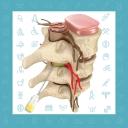 درمان بیرون زدگی دیسک کمر بدون جراحی با تزریق اپیدورال