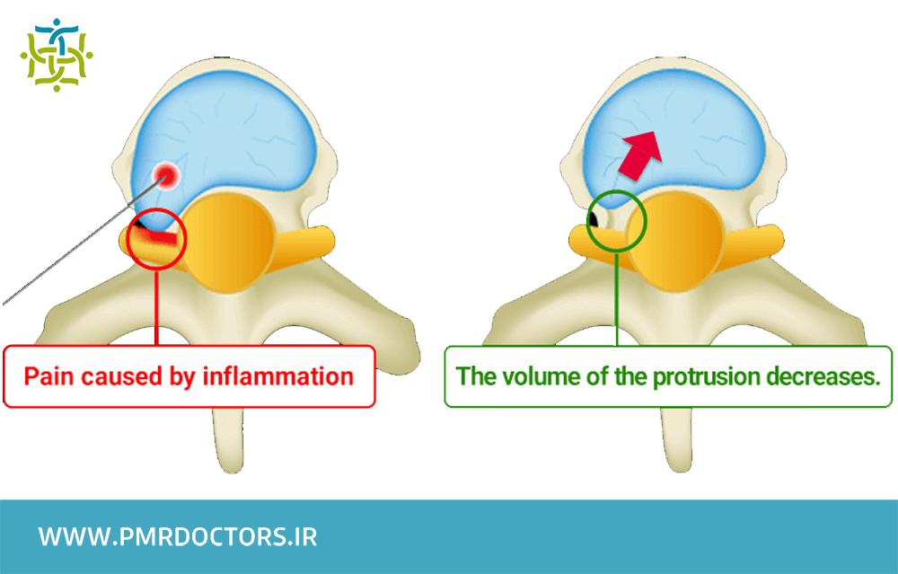 تفاوت درمان دیسک کمر به وسیله تزریق اپیدورال با درمان دیسک کمر با لیزر