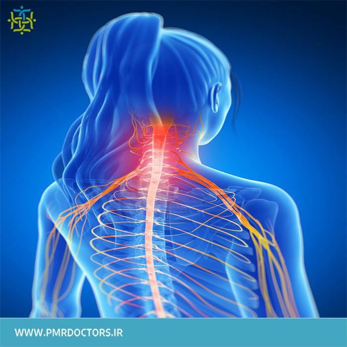 رادیکولوپاتی گردن