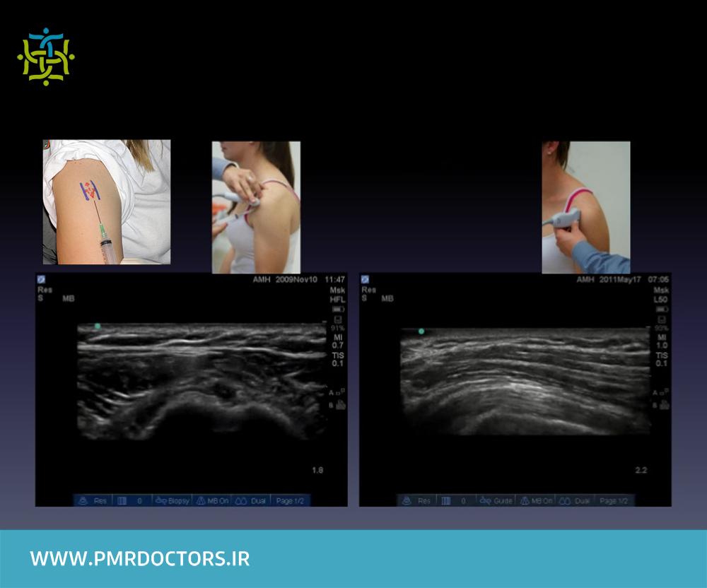 جراحی درد جلو شانه ناشی از آسیب و التهاب تاندون عضله دوسربازویی