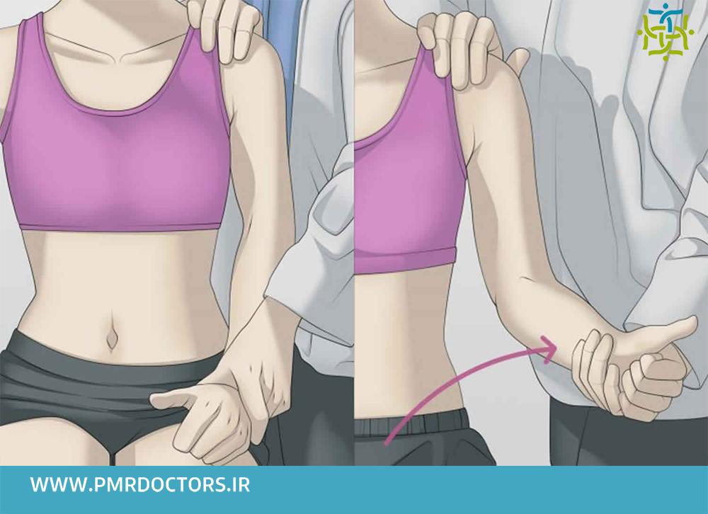 درمان پارگی و التهاب تاندون عضله دوسربازویی