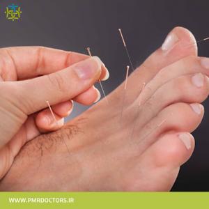 طب-سوزنی-گروه-تخصصی-پزشکان-طب-فیزیکی-و-توانبخشی