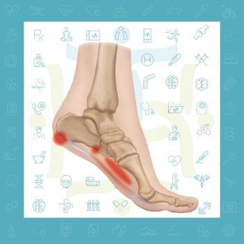 آنچه باید در مورد التهاب فاشیای کف پا یا خار پاشنه بدانید